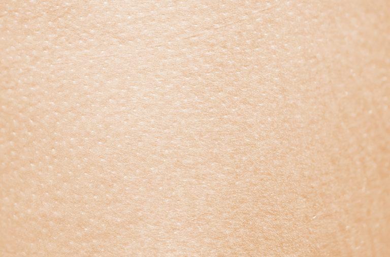 Atopisch eczeem, het signaal van een verstoorde huidbarrière